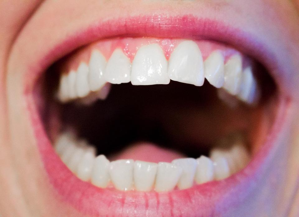 Yann Guez Dentiste Montpellier Ados soins dentaires