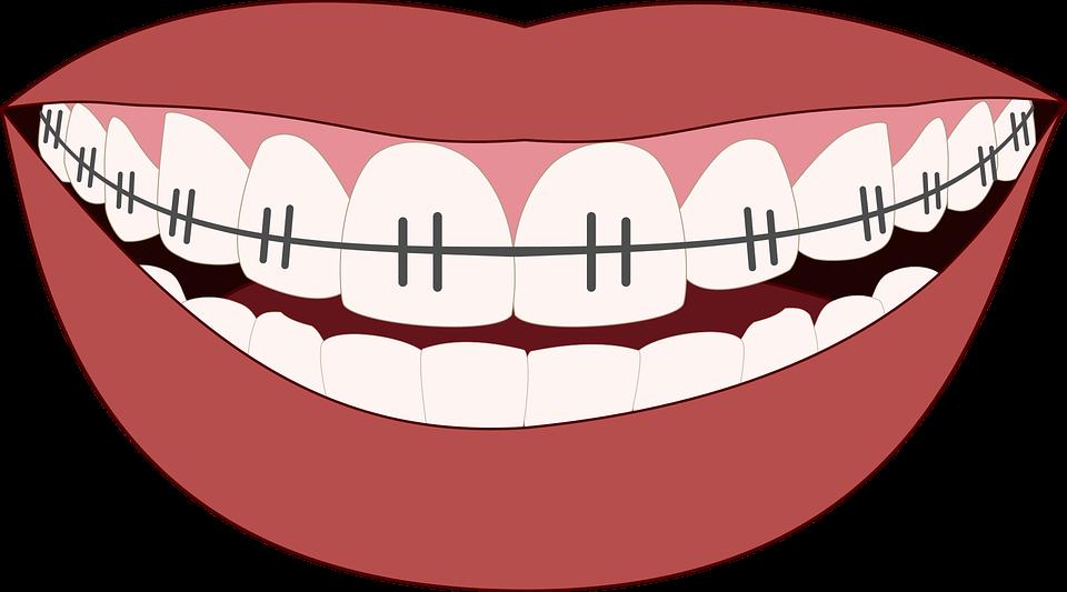 Yann Guez orthodontie