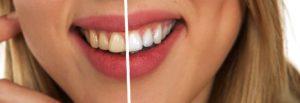 Des dents blanches, les conseils de Yann Guez