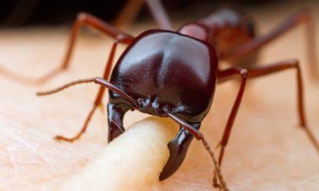 Comment soigner une piqûre de fourmi